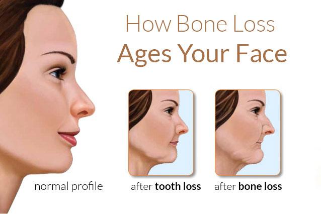 biohorizons-bone-loss